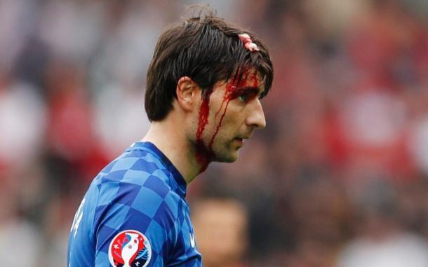 Un sanguinante Corluka. (fonte immagine: Telegraph)