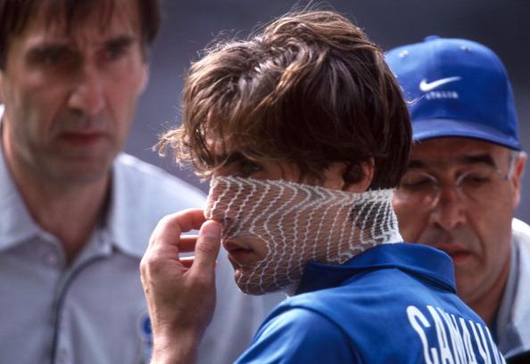 Um jovem Cannavaro recebe curativos após a cotovelada do francês Guivarc'h (Foto: Mark Leech/Getty Images)