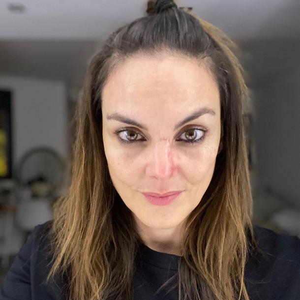 Proceso de recuperación de Mónica Carrillo | Fuente: Twitter @MonicaCarrillo