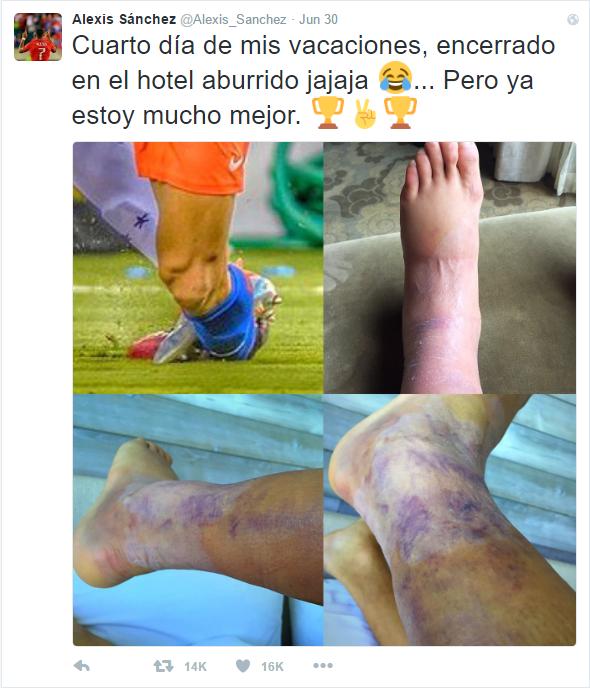 The damage done to Sanchez's left ankle | Photo: Twitter - @Alexis_Sanchez