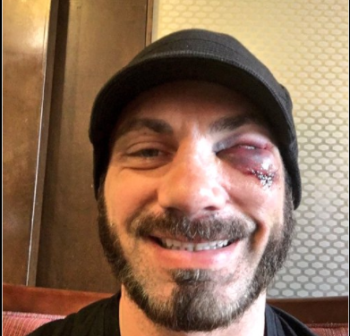 Aries' injury is worse than first thought (image: twitter)