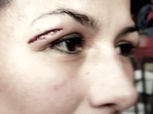 Impresionante tajo en el parpado derecho de Muciño | Foto: Boxnocaut