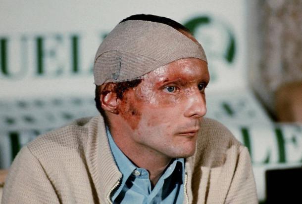 Lauda logo após sair do hospital (Foto: Reprodução / F1)