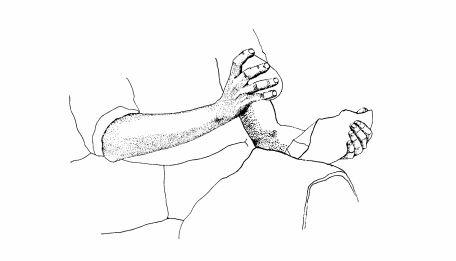 Ilustración de una talla lítica | Fuente:&nbsp;<strong>Tecnología y Terminología de la piedra tallada</strong>