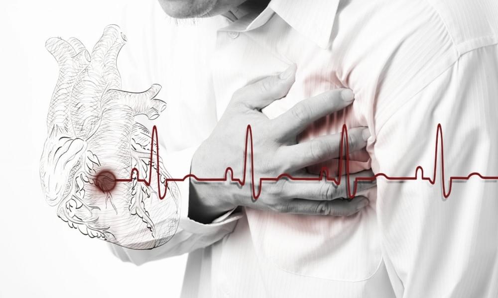 Haja coração! Acompanhar jogos pode aumentar chances de infarto
