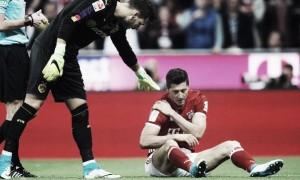Bayern, le condizioni di Lewandowski non preoccupano