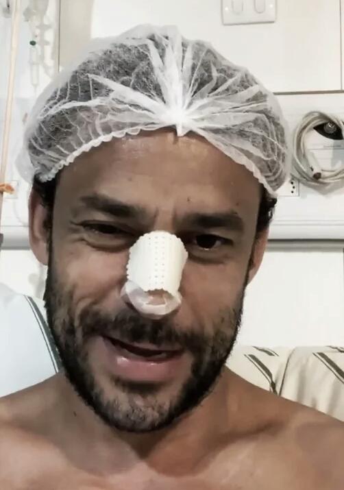 Com nariz fraturado, Fred passa por cirurgia e pode desfalcar Cruzeiro no Mineiro