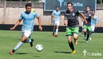 Real Club Celta B - CD Palencia: el Dépor visita al 'dentista'