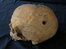 Trepanación: cirugía en la Prehistoria
